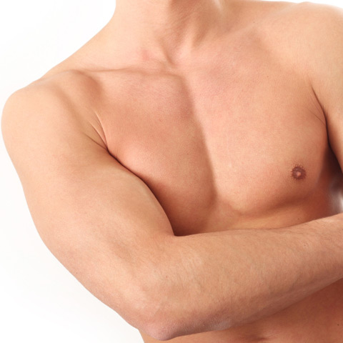 Brustvergrößerung bei männern